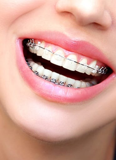 Closeup of woman smiling with braces