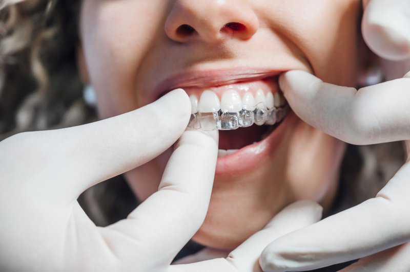 Closeup of woman getting Invisalign tray put on