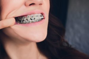 close-up of a person wearing rubber bands on braces in Glenpool